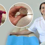 Menstrualna čašica - odlična alternativa ulošcima i tamponima.