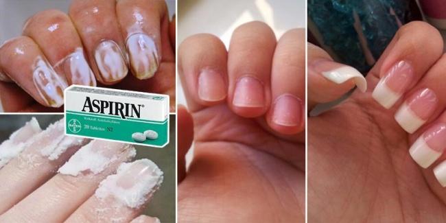 11 situacija u kojima će vas spasiti običan aspirin