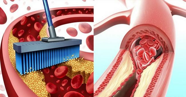 10 namirnica koje će bez upotrebe lekova, očistiti vaše arterije.