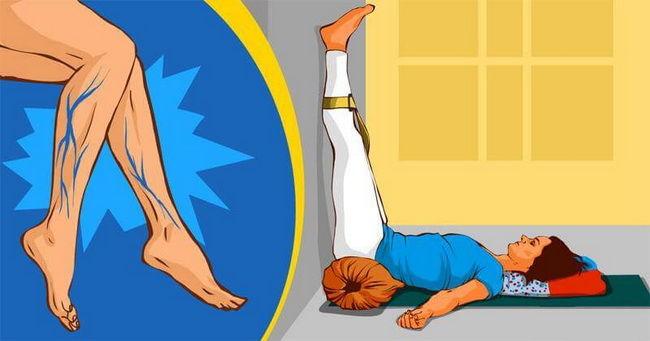 5 asana joge koje će vam pomoći da se oslobodite proširenih vena